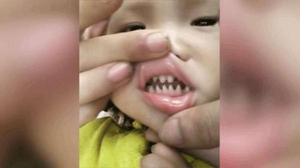 实拍宝宝这一副鲨鱼牙齿,太有个性,网友:你儿子有贵族血统